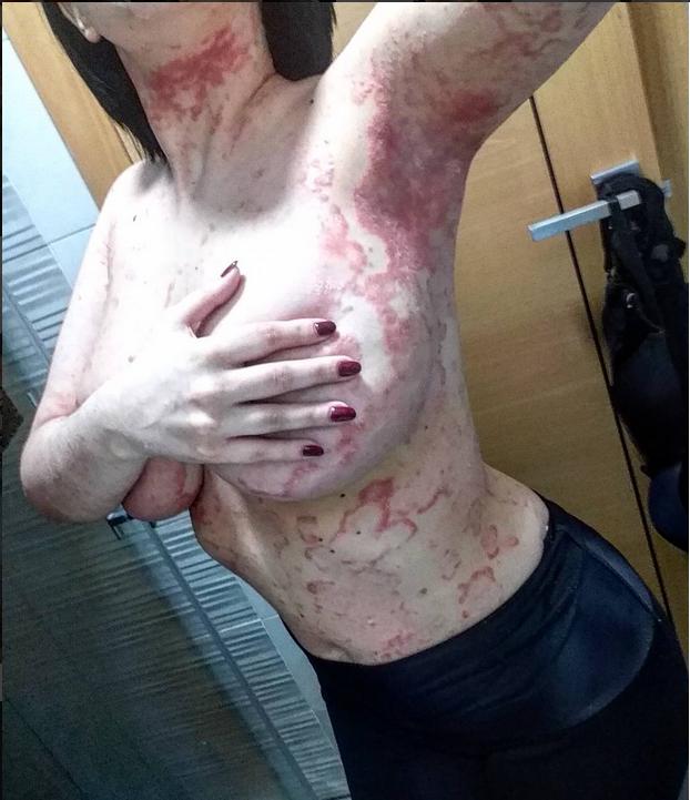 Страшно красивые: Модель с псориазом взорвала Instagram. Фото Скриншот Instagram/celia_dalmatita