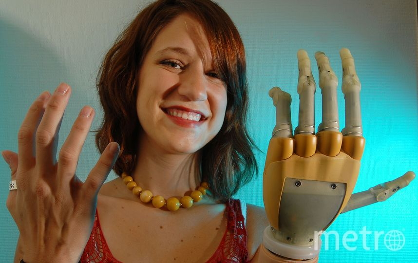 Девушка с протезом вместо руки. Фото Getty