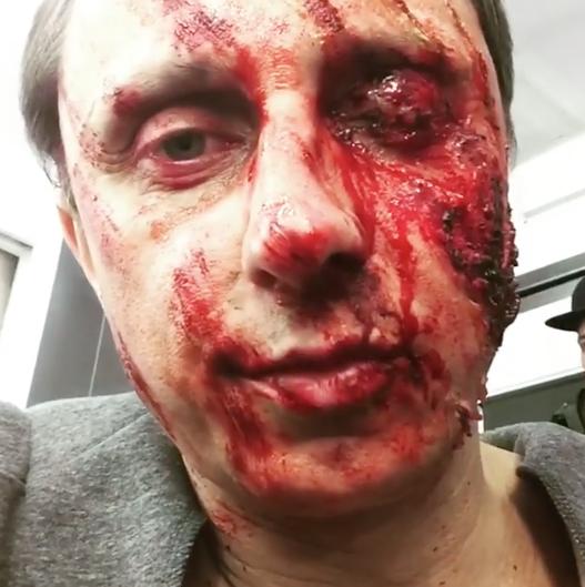 Вадим Галыгин шокировал почитателей своим изувеченным лицом
