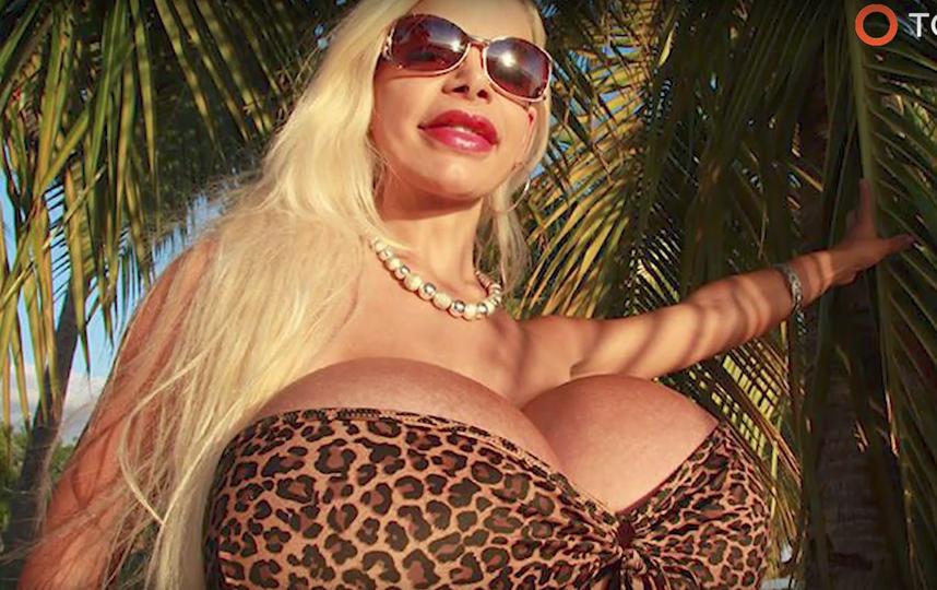 Модели с наибольшей грудью вевропейских странах запретили вставить новые импланты