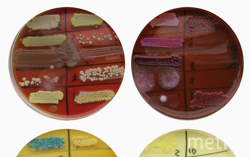Выращенные со смывов иконы бактерии. Фото предоставлено Дарьей Фёдоровой