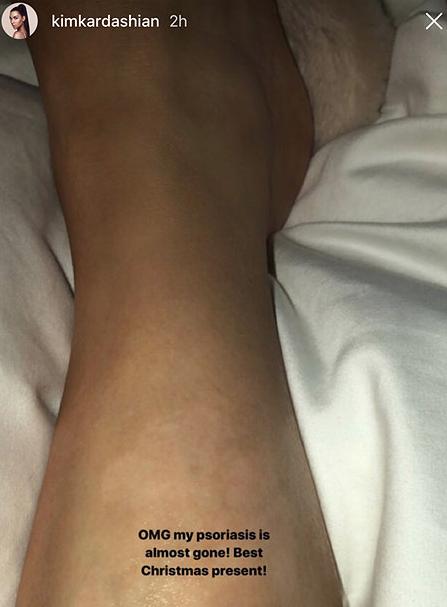 Нога Ким Кардашьян. Фото www.instagram.com/kimkardashian