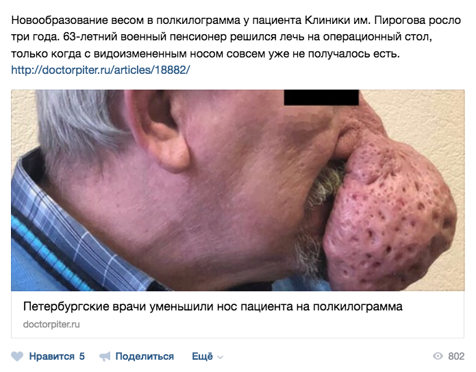 Петербургские врачи уменьшили нос пациента на полкилограмма. Фото https://vk.com/doctorpiter
