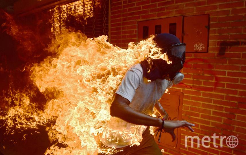 Хосе Виктор Салазар Балза загорелся в результате ожесточённых столкновений с полицией во время акции протеста против президента Венесуэлы Николаса Мадуро в Каракасе. 2017. Фото AFP