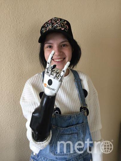 Маргарита Грачёва с новым протезом на правую руку. Фото предоставлено Маргаритой Грачёвой.