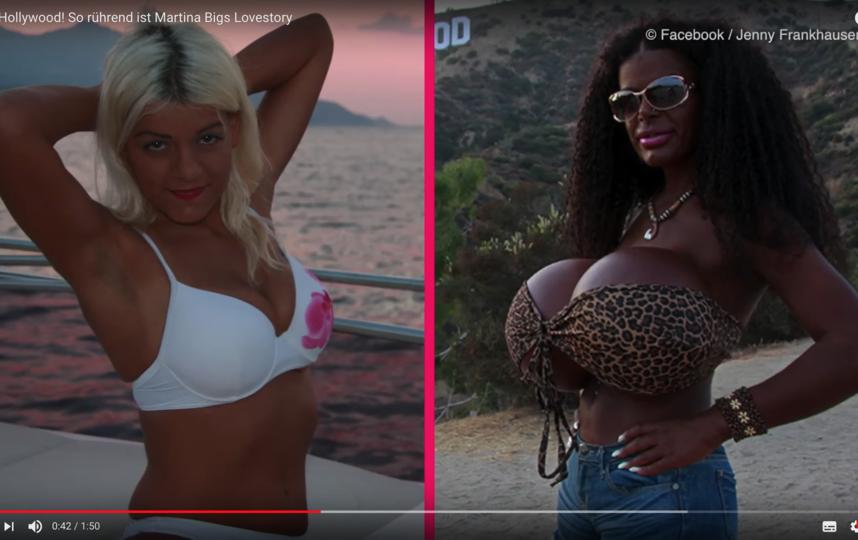 Мартина Блонд (Мартина Биг) до и после трансформации. Фото Скриншот Youtube
