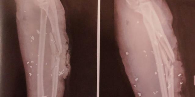 На снимке ноги одной из пострадавших видны осколки взрывного устройства.