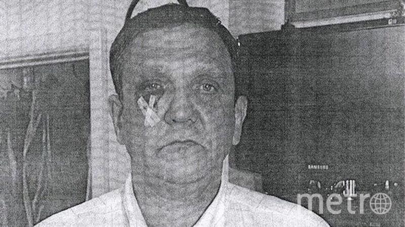 Генпрокуратура показала фото Владимира Терлюка, сделанное якобы после нападения. Фото Генпрокуратура РФ