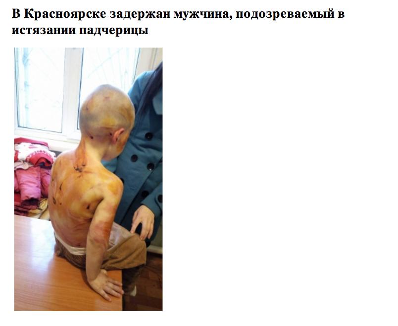 Девочка получила множественные травмы и ушибы. Фото sledcom.ru