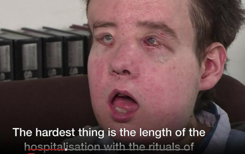 43-летний Жером Хамон перенес две трансплантации лица. Фото Скриншот видео.