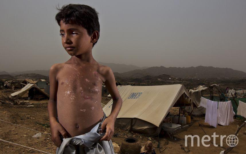 Особенно в гуманитарной помощи нуждаются дети. Фото Getty