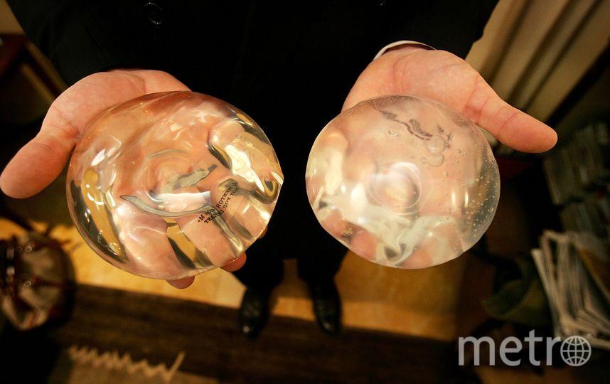 Импланты. Фото Getty