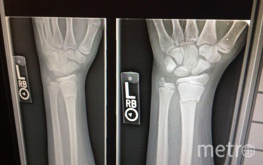 Связывающее вещество склеивает сломанные части кости всего за пять минут. Фото Getty