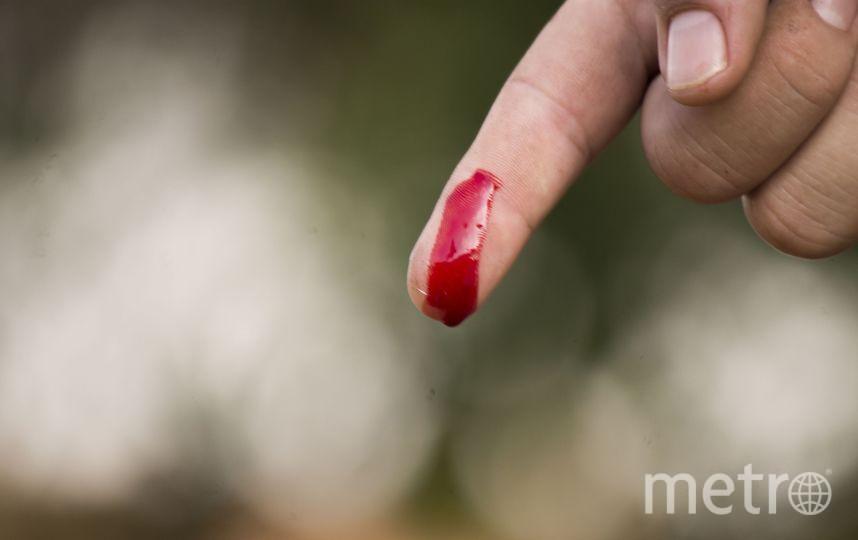 """Новая разработка учёных печатает слои """"био-чернил"""" прямо на пациенте, в буквальном смысле заклеивая рану полосками клееподобного вещества, из которого впоследствии вырастет настоящая новая кожа. Фото Pixabay"""