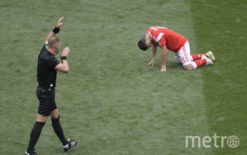 Дзагоев получил травму задней поверхности бедра в стартовом матче ЧМ-2018. Фото AFP