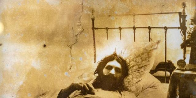 Распутин после первого покушения в Тюменской больнице.