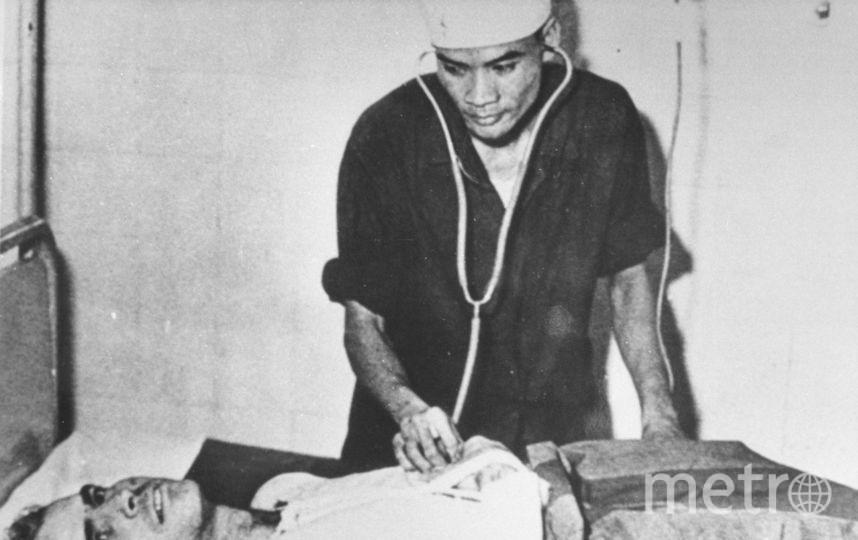 Джон Маккейн, фотоархив. Вьетнамский врач осматривает Джона Маккейна в госпитале Ханоя, Вьетнам. Октябрь 1967. Фото Getty