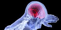 Учёные назвали лёгкий способ избежать инсульта