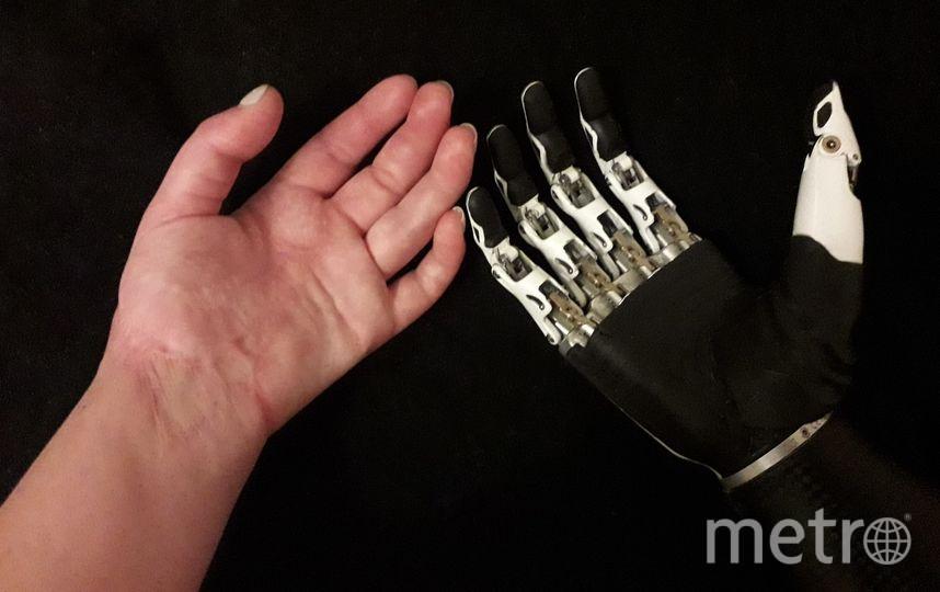 Спасённая левая кисть и протез на правую руку Риты Грачёвой. Фото VK/Маргарита Грачёва
