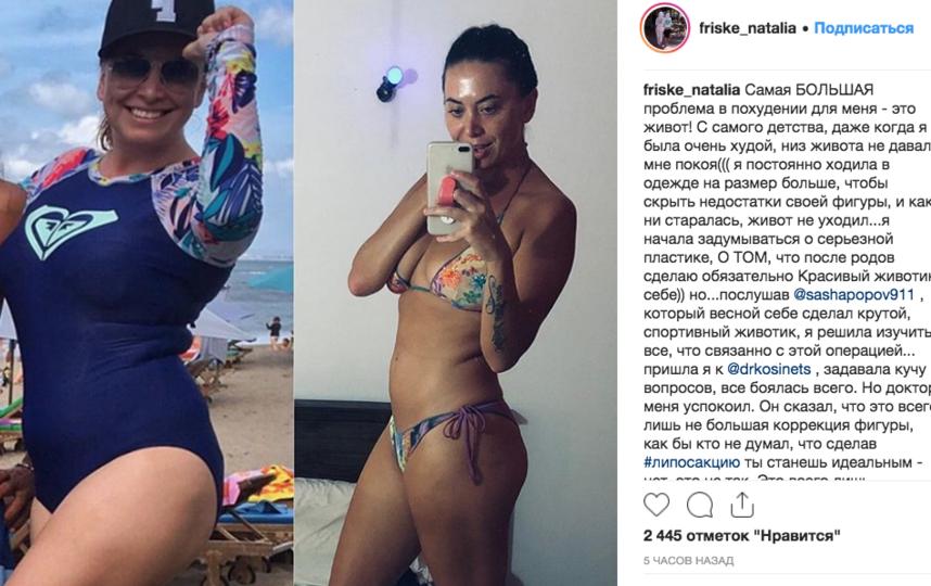 Наталья Фриске до и после похудения. Фото instagram.com/friske_natalia