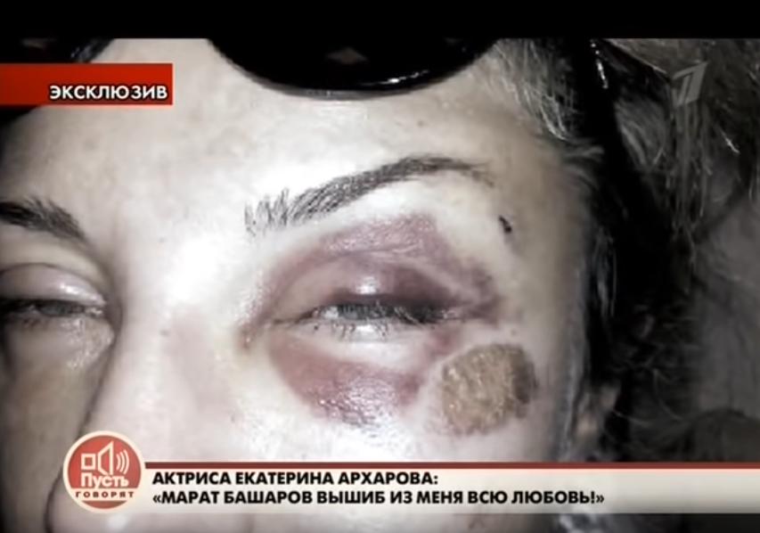 Екатерина Архарова после избиения Маратом в 2014 году. Фото Скриншот Youtube