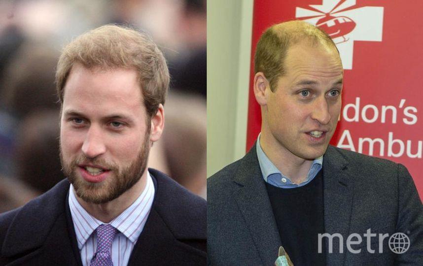 10YearsChallenge. Принц Уильям в конце 2008 года отрастил бороду. А вот спустя 10 лет волос на голове у него стало гораздо меньше. Фото Getty