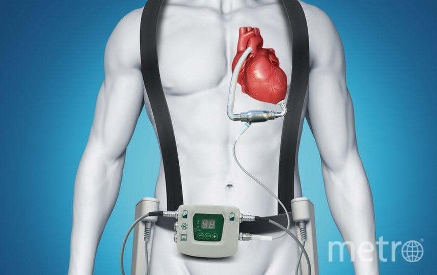 """Графическое изображение """"искуственного сердца"""". Фото www.almazovcentre.ru"""