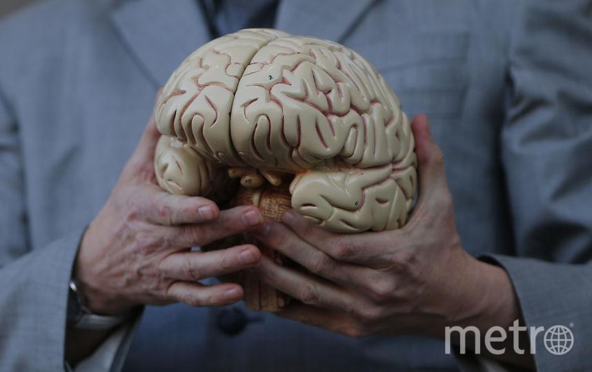 Макет человеческого мозга. Фото Getty