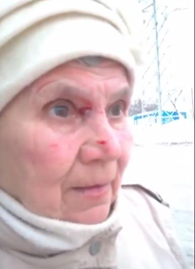 У пенсионерки рассечено лицо в районе глаза и поцарапана щека. Фото Скриншот youtube.com/watch?v=fAtHi8s-kic