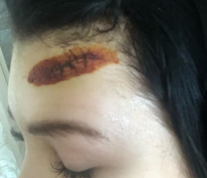Пострадавшая в результате нападения петербурженки, удаленной из группы родительского комитета в WhatsApp. Фото https://vk.com/spb_today