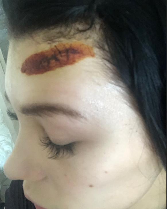 Петербурженка рассказала подробности о нападении на нее с ножом в детском саду. Фото предоставлено Анастасией Марковой.