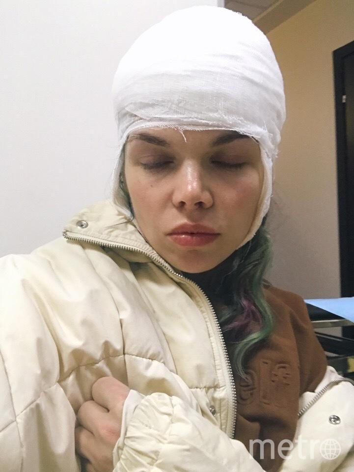 Сосулька оставила след на голове Маши, который теперь будет сложно скрыть. Фото Мария.