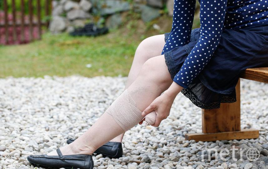 Врач может посоветовать носить специальную повязку. Фото depositphotos