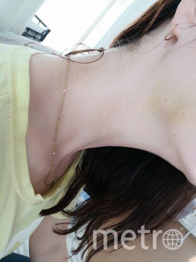 """Алла не хочет показывать целиком всю рану, поскольку говорит, что выглядит она ужасно. Фото предоставила Алла, """"Metro"""""""