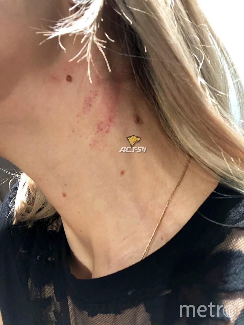 """Девушка получила травмы, вступившись за другую пассажирку. Фото паблик """"АСТ-54"""""""