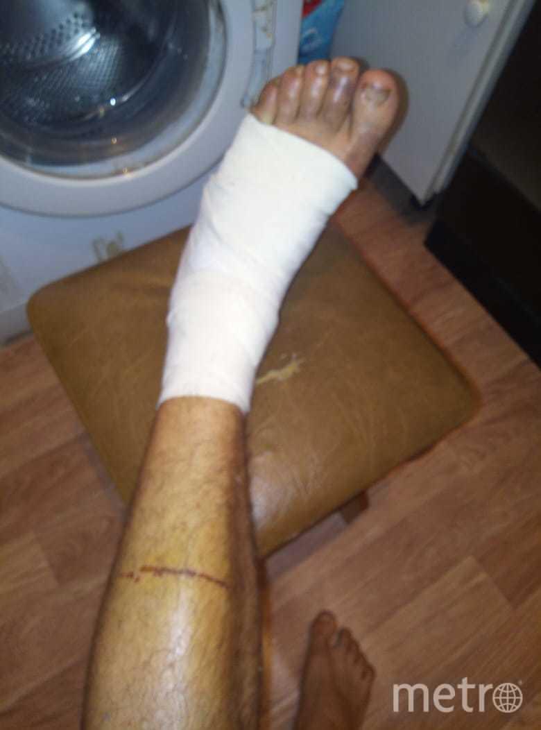 Так выглядит травмированная нога курьера сегодня. Фото Предоставлено Русланом Д.