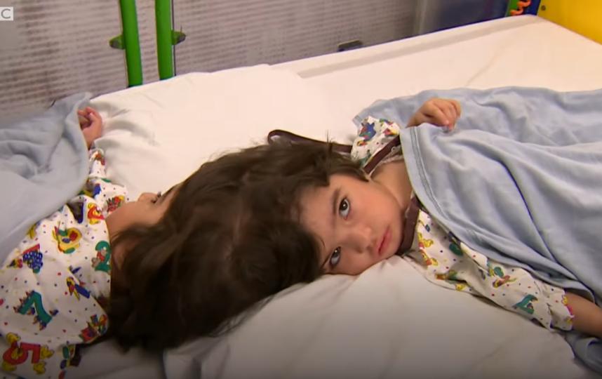 Двухлетние сёстры Сафа и Марва из Пакистана родились со сросшимися черепами и общими кровеносными сосудами. Фото Скриншот https://www.youtube.com/watch?v=DfKTHPUigvc, Скриншот Youtube