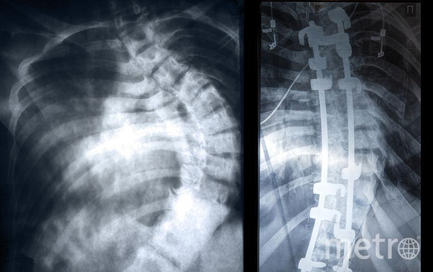 """Фотопроект """"Сёстры"""". Позвоночник Светланы до и после операции. Фото Светлана Беляева"""