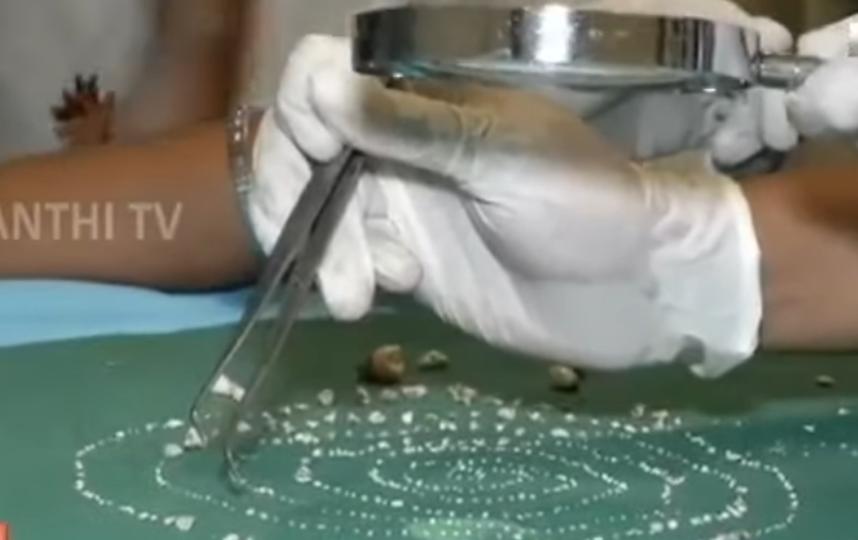 Операция длилась почти 5 часов. Фото Скриншот https://www.youtube.com/watch?v=THFips_5rf0, Скриншот Youtube