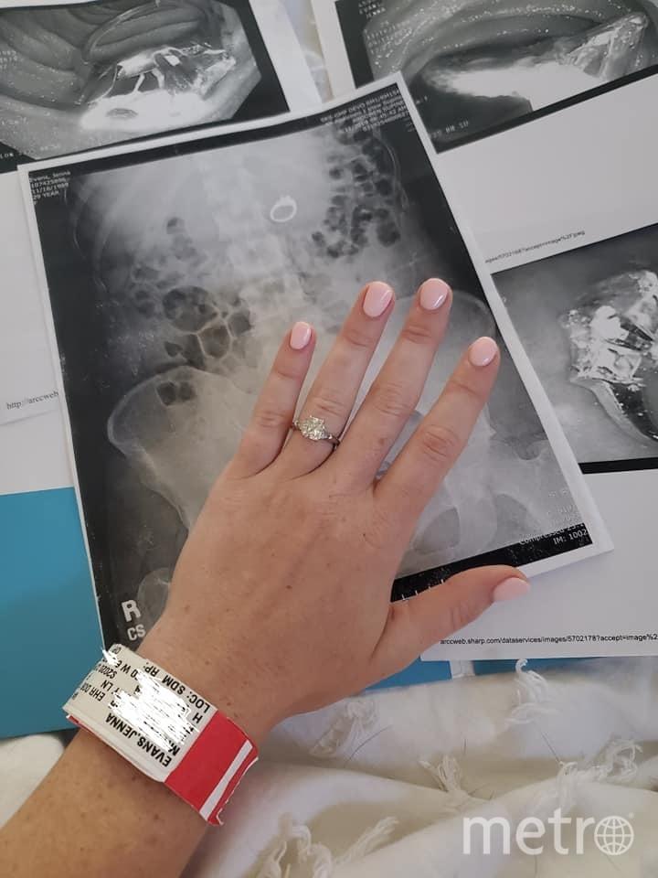 Американка проглотила обручальное кольцо во сне. Фото https://www.facebook.com/jenna.evans.121/