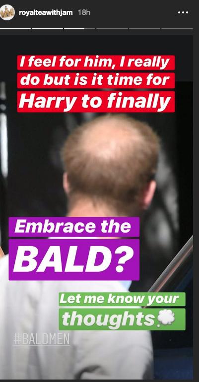 """В соцсетях обсуждают лысину Гарри. Фото """"Metro"""""""