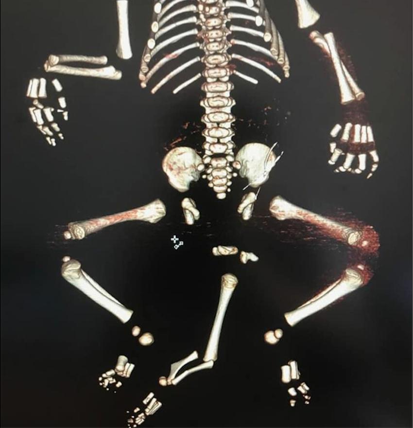 Московские врачи провели операцию малышу, который родился с тремя ногами. Фото mosgorzdrav.ru