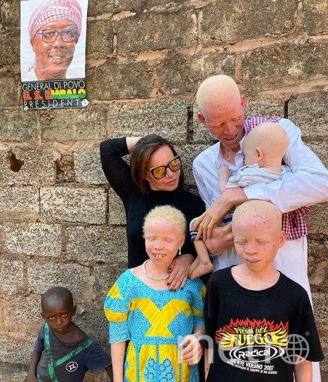 Дизайнер Мила Ануфриева привлекает внимание к людям с альбинизмом в Африке. Фото Скриншот @mila_for_africa