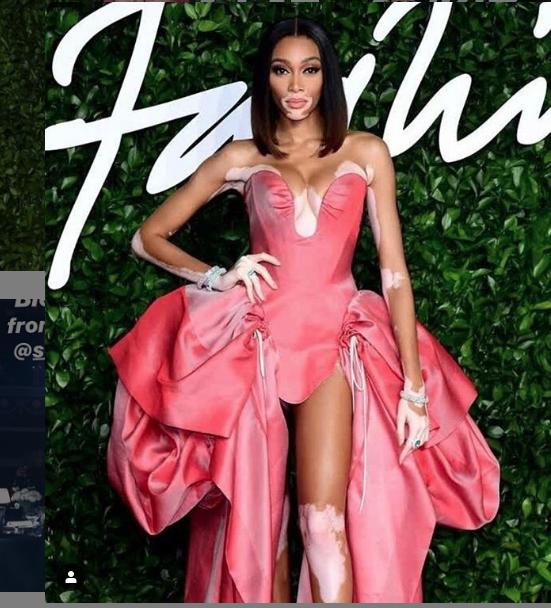 "Fashion Awards-2019. Винни Харлоу. Фото https://www.instagram.com/winnieharlow/, ""Metro"""