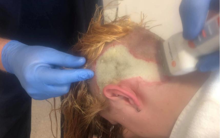 В Австралии девушка осветлила волосы дешёвой краской и получила сильнейшие ожоги. Фото скриншот facebook.com/annaliese.foxxx