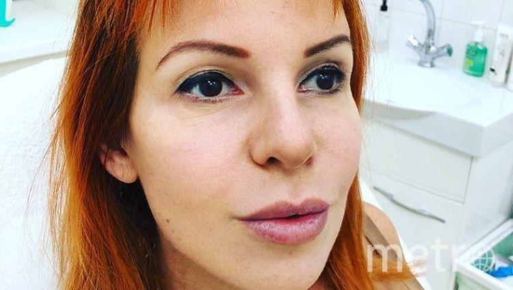 Наталья Штурм показала результат после процедуры. Фото instagram.com/nataliashturm