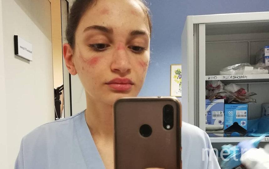 Алессия Бонари. Фото instagram