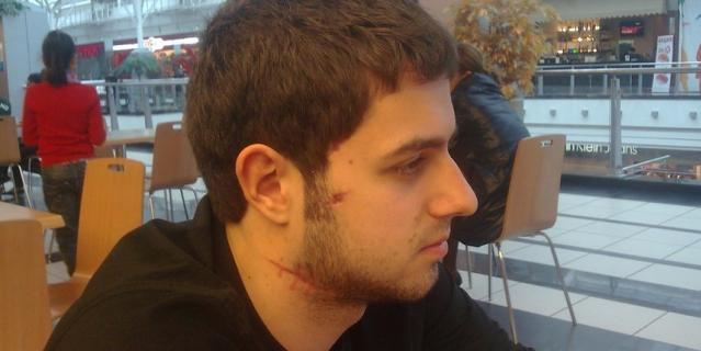 Артём Медведев, на лице и шее видны шрамы.