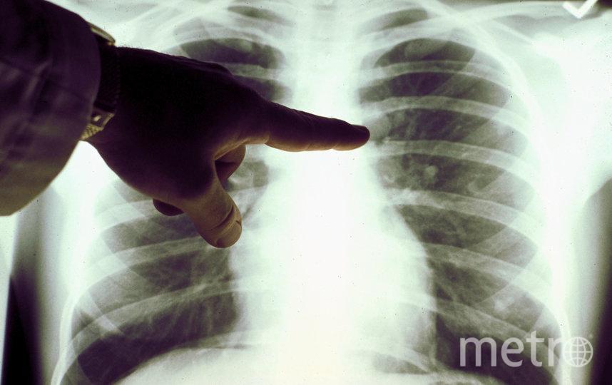 Учёные госпиталя Св. Павла в Гонконге провели исследование, в результате которого обнаружилось, что курение может увеличить риск заболевания коронавирусом. Фото Getty