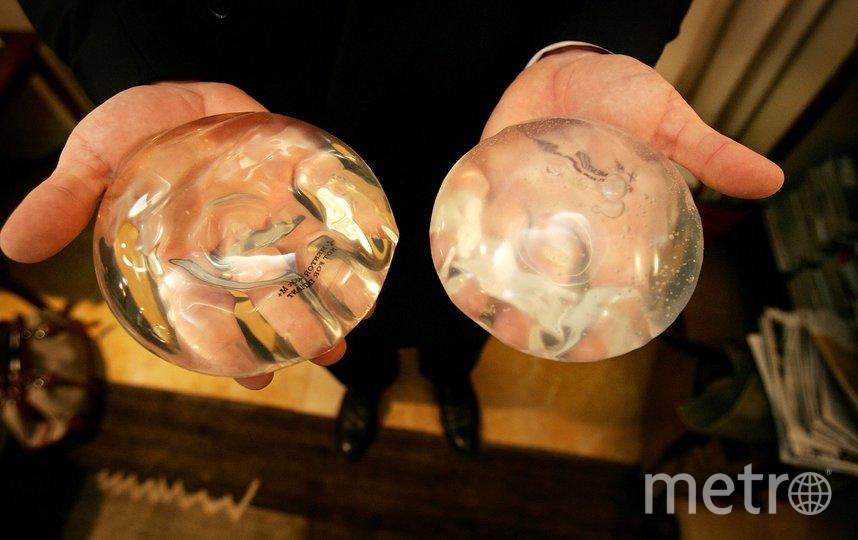 Так выглядят силиконовые импланты. Фото Getty